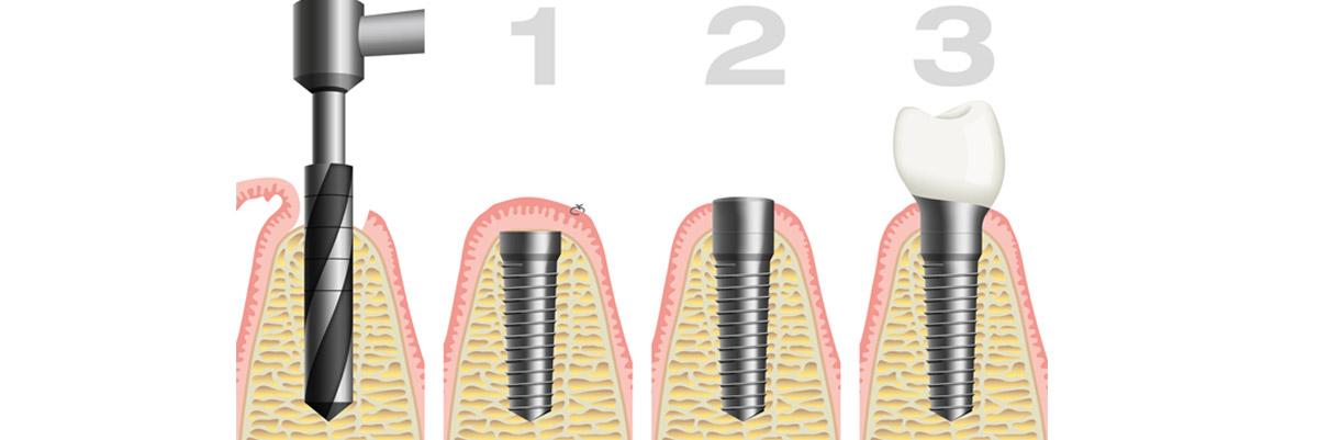 Implantologia