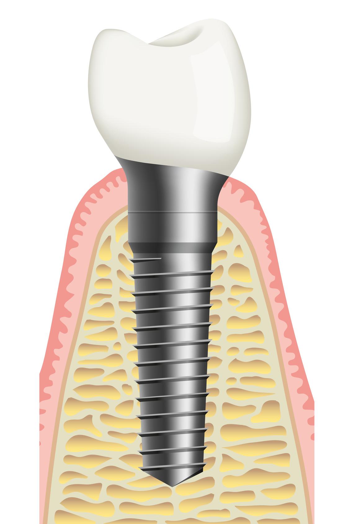 dentista colico dottor massimo rizzi laser terapia. Black Bedroom Furniture Sets. Home Design Ideas
